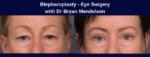 Blepharoplasty Mendelson