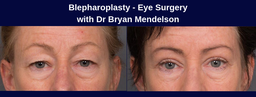 Blepharoplasty – Eye Surgery with Dr Bryan Mendelson