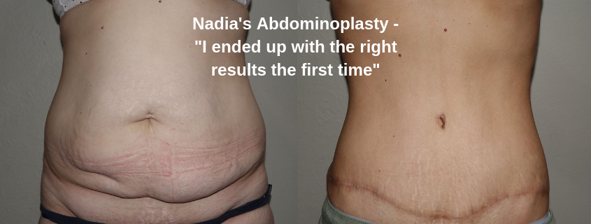 "Nadia's Abdominoplasty – ""I ended up with the right results the first time"""