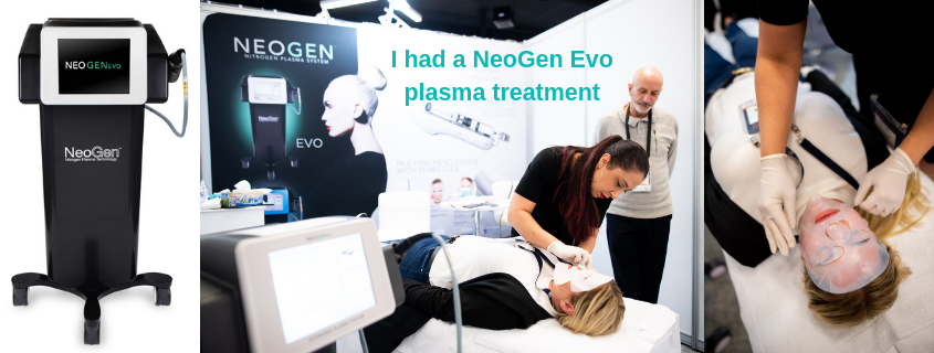 I had a NeoGen Evo plasma treatment and here is my experience