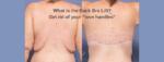 back bra lift