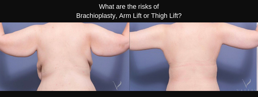 What are the risks of Brachioplasty, Arm Lift or Thigh Lift?
