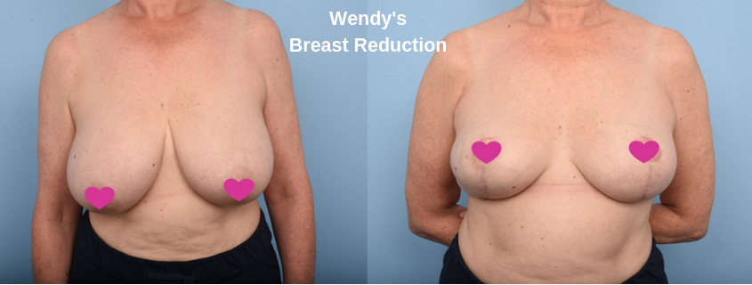 Wendy's Breast Reduction