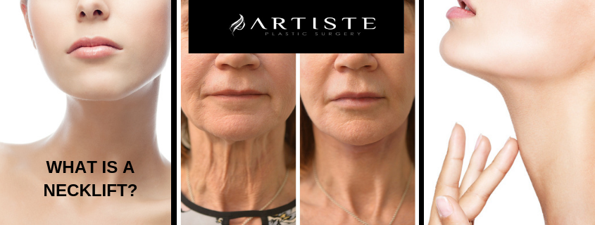 What is a neck lift?