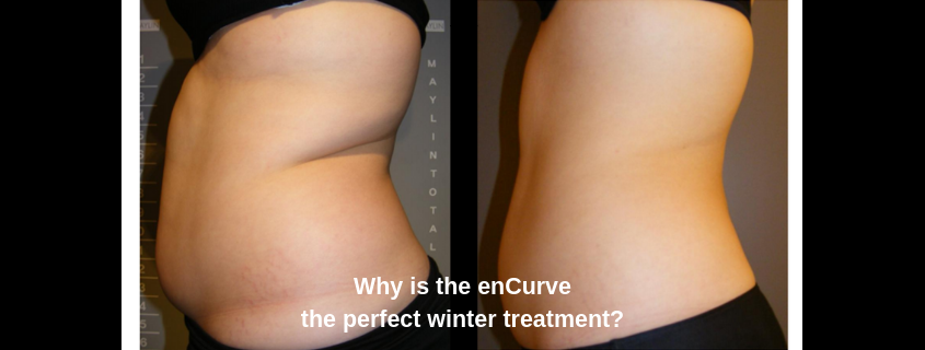 Why is the enCurve the perfect winter treatment?