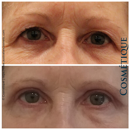 Blepharoplasty Patient-1 Front