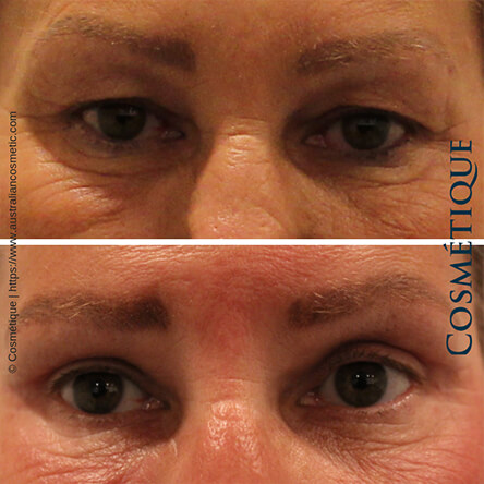 Blepharoplasty Patient-2 Front