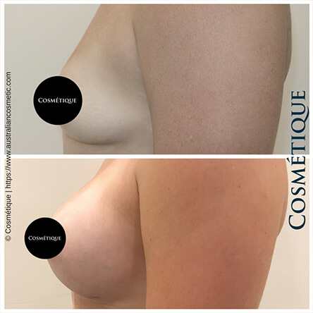 Breast Augmentation Patient-1 Left Side