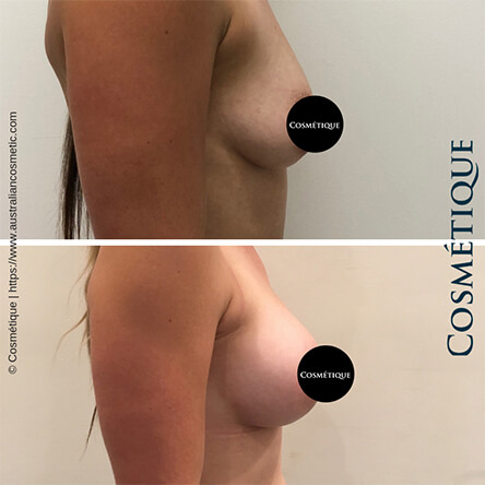 Breast Augmentation Patient-2 Side