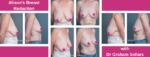Alison's breast reduction
