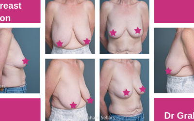 Alison's Breast Reduction with Dr Graham Sellars