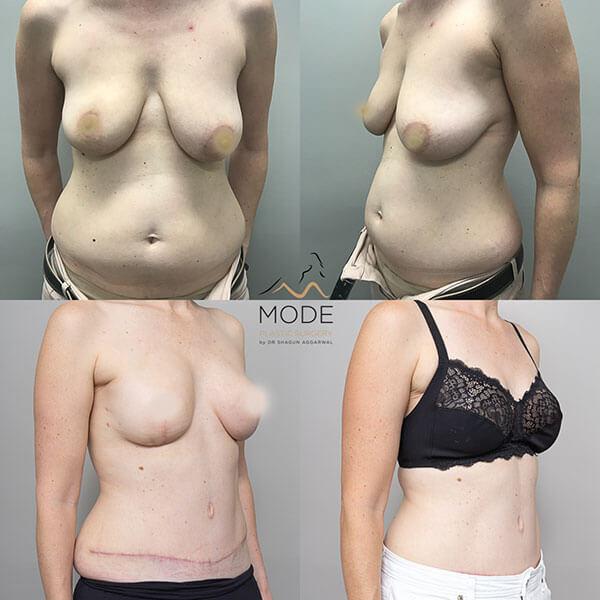Breast Recon
