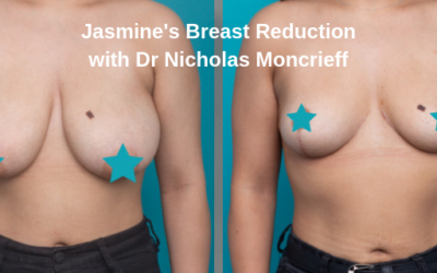 Jasmine's Breast Reduction with Dr Nicholas Moncrieff