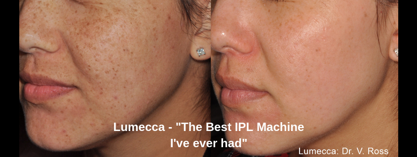 "Lumecca – ""The Best IPL Machine I've ever had"""