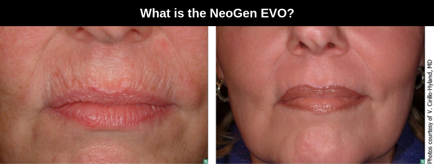 What is the NeoGen EVO?
