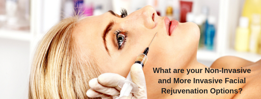 facial rejuvenation options