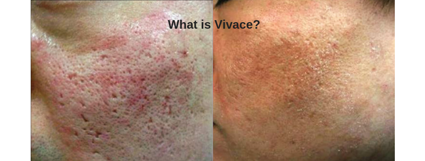 What is Vivace?