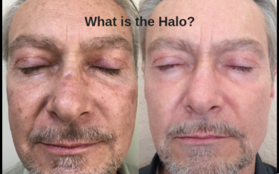 What is the Halo treatment?