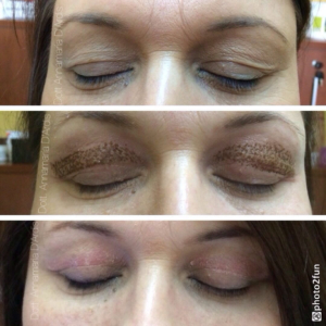 blepharoplasty without surgery