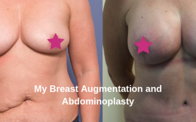 My Mummy Makeover – an abdominoplasty and breast augmentation