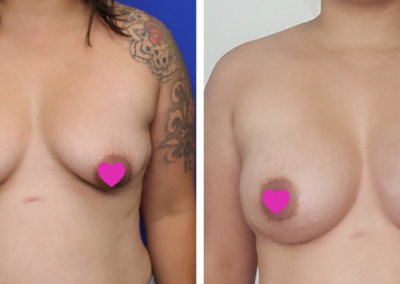 Breast Augmentation Sydney