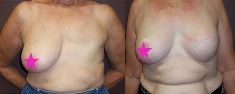 Breast Reconstruction Cairns