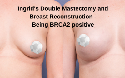 Ingrid's Double Mastectomy and Breast Reconstruction – Being BRCA2 Positive