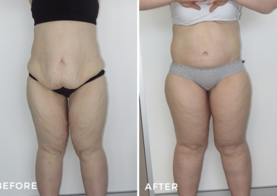 Lower Body Lift After Massive Weight Loss