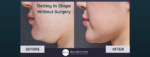 shape without surgery