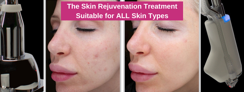 The Skin Rejuvenation Treatment Suitable for ALL Skin Types