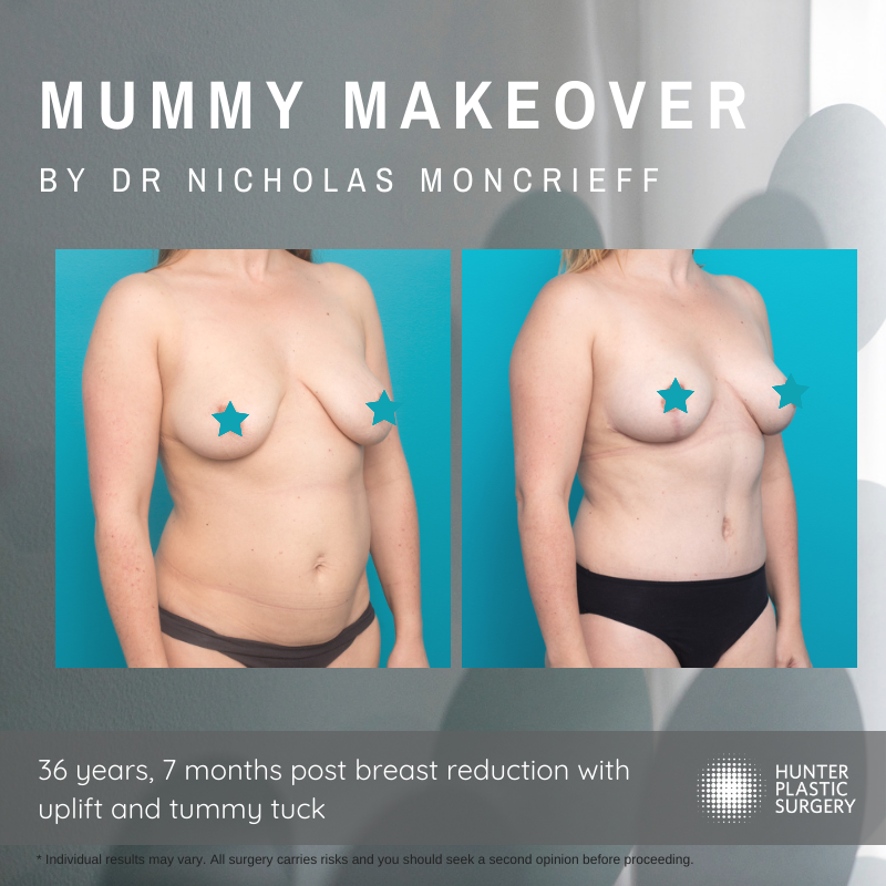 Lisa's Mummy Makeover