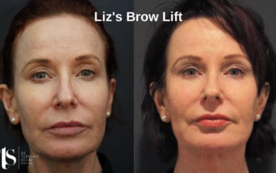 Liz's Brow Lift with Dr Terrence Scamp, Specialist Plastic Surgeon