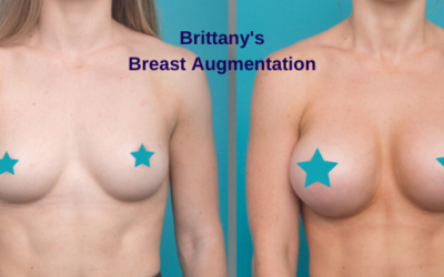 Brittany's Breast Augmentation with Dr Nicholas Moncrieff