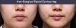 Facial Slimming