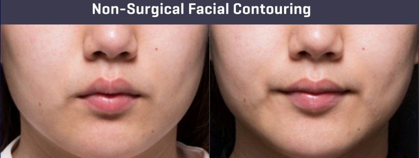 Facial Slimming and Contouring –  What are your options?