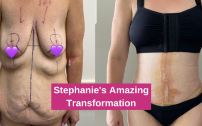 Stephanie's Amazing Transformation – Extended Corset Abdominoplasty