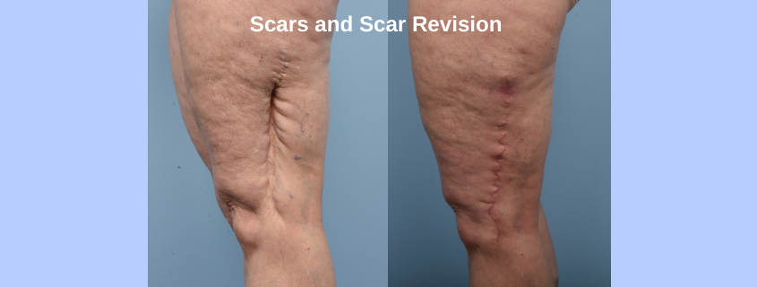 Scars and Scar Revision Surgery