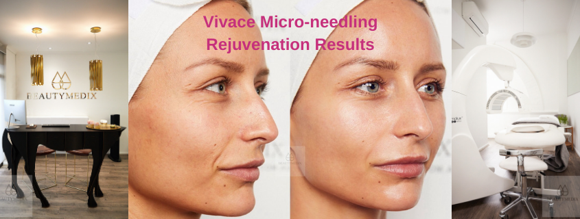 Vivace Micro-needling Rejuvenation Results