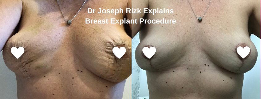 Dr Joseph Rizk Explains Breast Explant Procedure