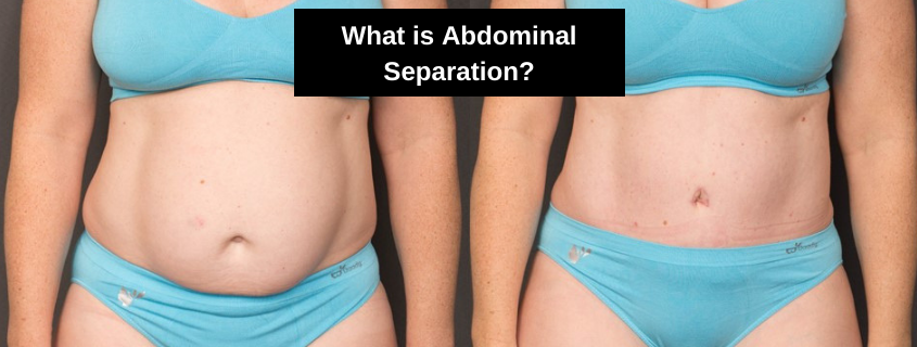 What is Abdominal Separation?