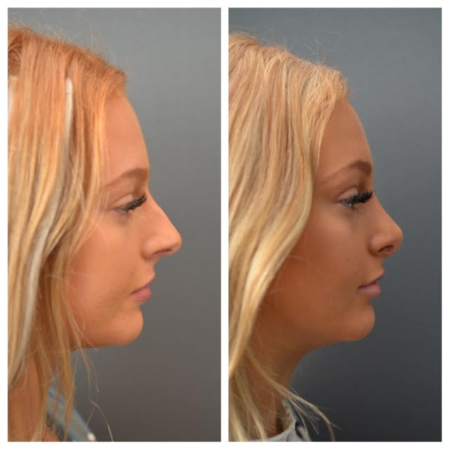 rhinoplasty options