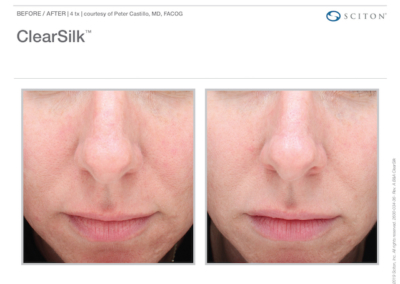 ClearSilk Before & After