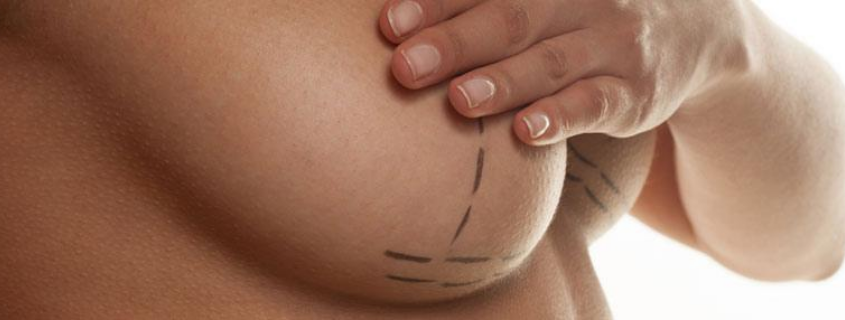 How do you know if you need Breast Implants or Breast Lift?