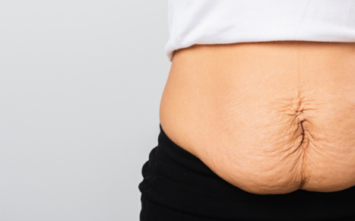 Kerrie Edwards On Why We All Need To Support The Tummy Tuck Petition