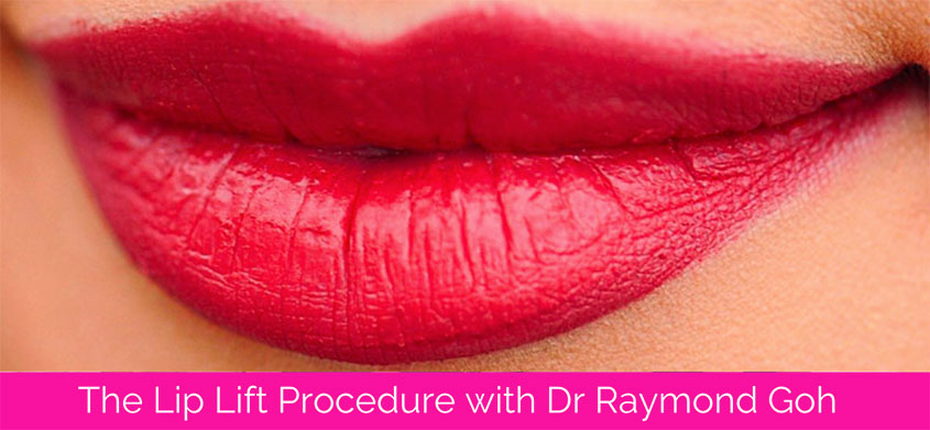 The Lip Lift Procedure with Dr Raymond Goh