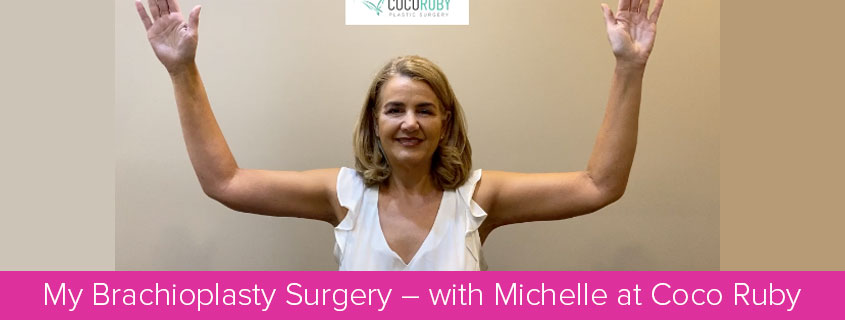My Brachioplasty Surgery – with Michelle at Coco Ruby