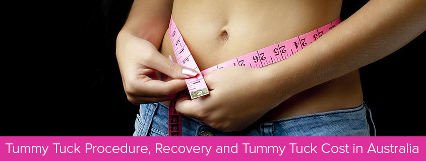Tummy Tuck Australia – Tummy Tuck Procedure, Recovery and Tummy Tuck Cost in Australia