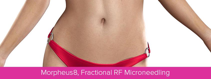 Morpheus8, Fractional RF Microneedling